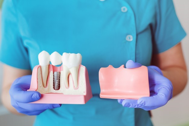 Top Symptoms For Dental Implant Failure And Tips For A Prevention