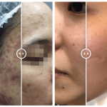 How To Get Rid Of Acne Scars With Laser Treatment